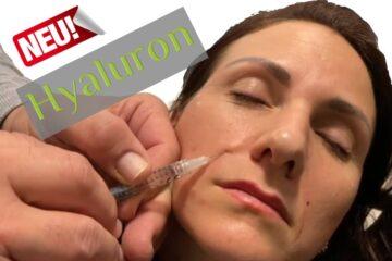 Faltenunterspritzung mit Hyaluronsäure