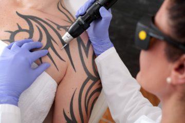 Tattooentfernung