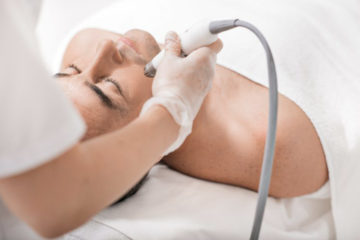 Laserentfernung Besenreiser, Couperose und anderen Gefäßveränderungen